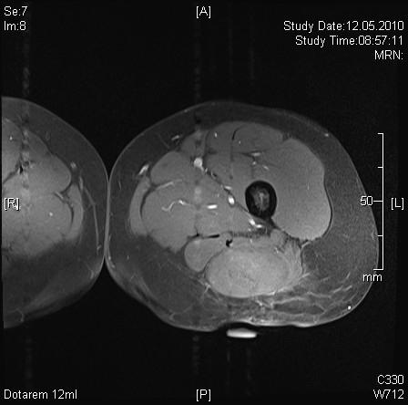 Oberschenkel symptome weichteilsarkom Sarkome: Wenn